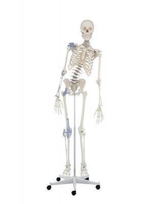 skelett_toni_beweglich_mit_bandapparat