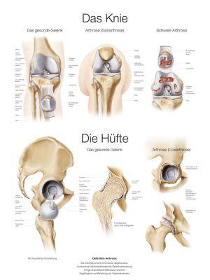 lehrtafel_das_knie__die_huefte_50x70cm